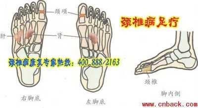 颈椎病的足疗与手疗图 颈椎脚底按摩亚血位图