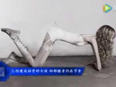 世界上最瘦的女人 世界最瘦的人照片