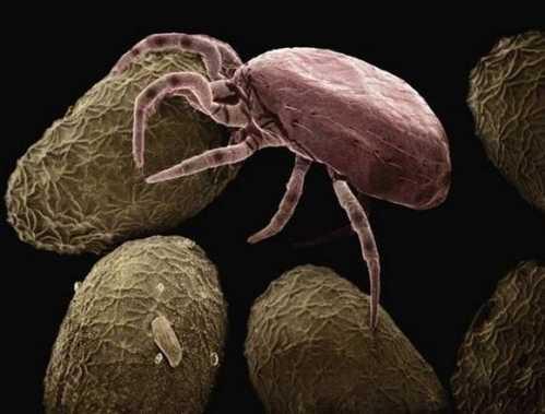一个小妙招把螨虫完美去除 脸上痘痘去除小窍门
