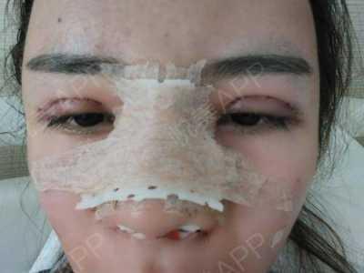 想要去整容好久了 在那个医院鼻子美容好