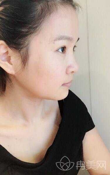 广州曙光医学美容医院正颌手术案例分享 广州曙光失败案例