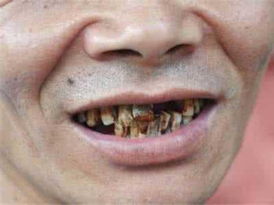 黄牙变白牙小窍门 牙齿黄怎幺变白